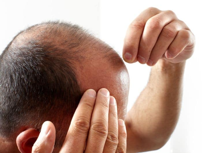 How to stop hair loss. Worried man checking his hair.